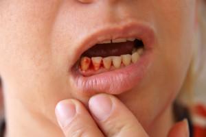 Gum Hygiene Rehab Service