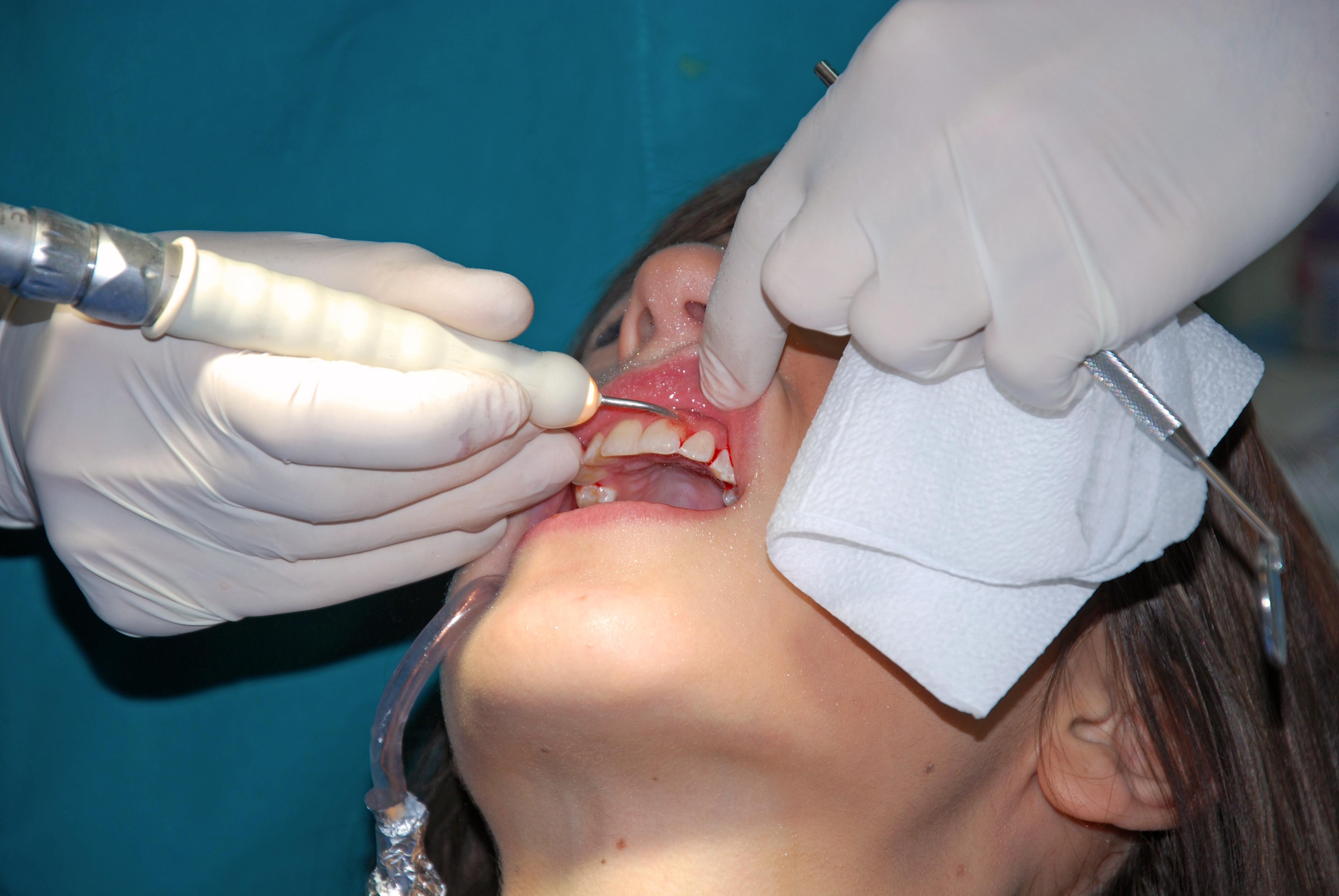teeth dentist smile health